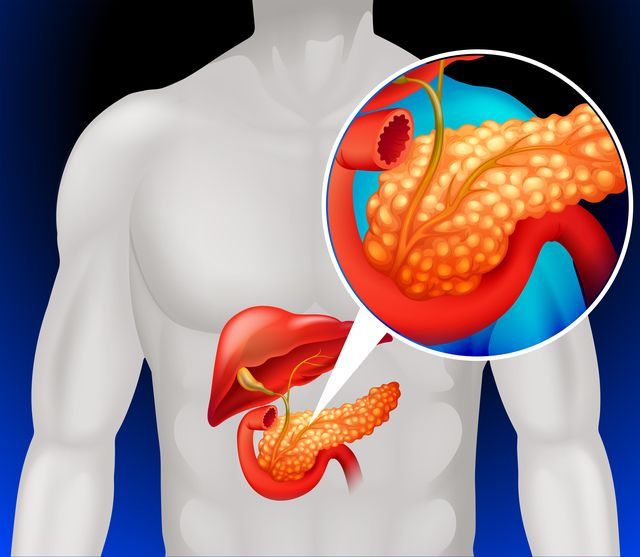 Bolesti brucha nepodceňujte, ani keď sa hlásia iba občas, najmä po jedle. Nemusí ísť o neškodnú diétnu chybu, ale o pankreas.