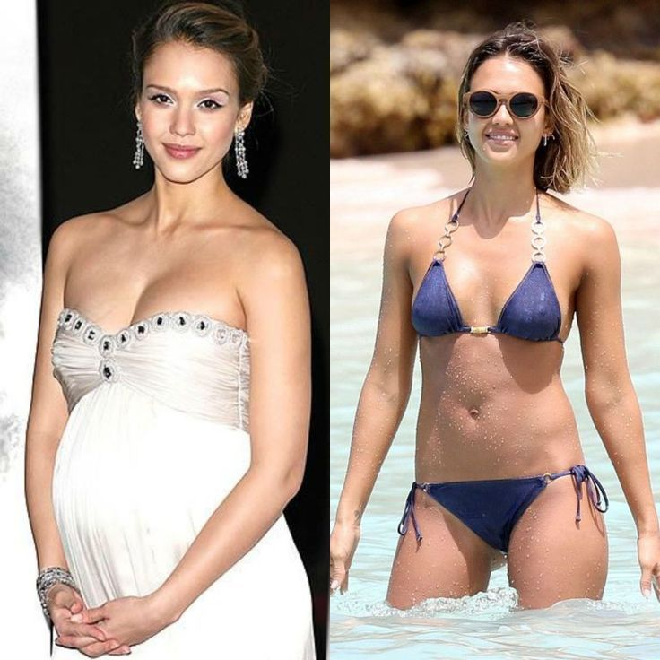 #LiposculptureBeforeandAfter-25 Famous Celebrities Before And After Liposuction …