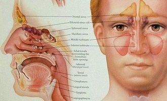 What Is Pan Sinus Disease? thumbnail
