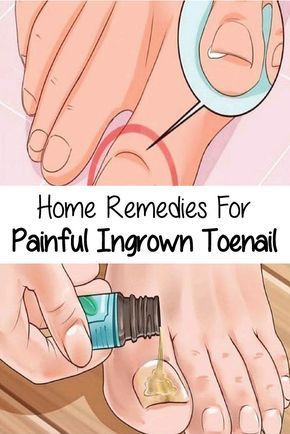 If you ever suffered from an ingrown toenail, then you know that it's not only super painful, it's also hard to cure. Everyday activities like walking and