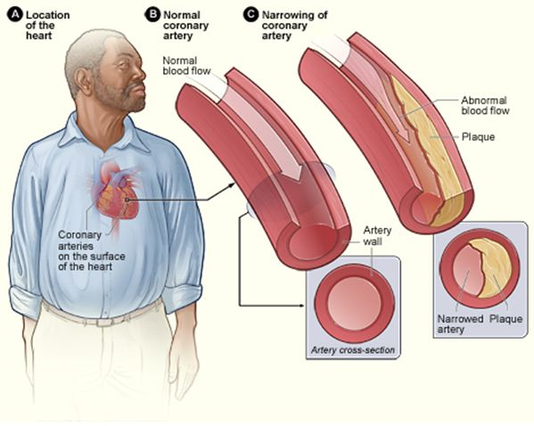 20 remèdes maison pour réduire l'excès de cholestérol. Le cholestérol est un composé lipidique essentiel au bon fonctionnement de l'organisme. Il entre