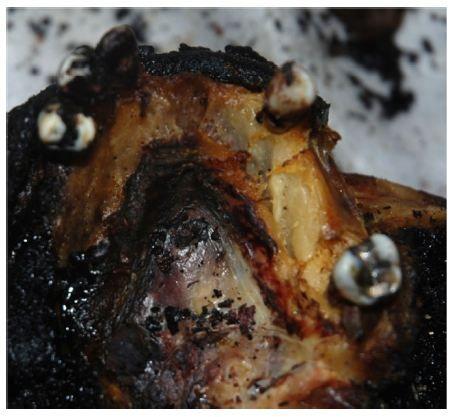 Figure 11 The burn damage on the upper jaw bone.