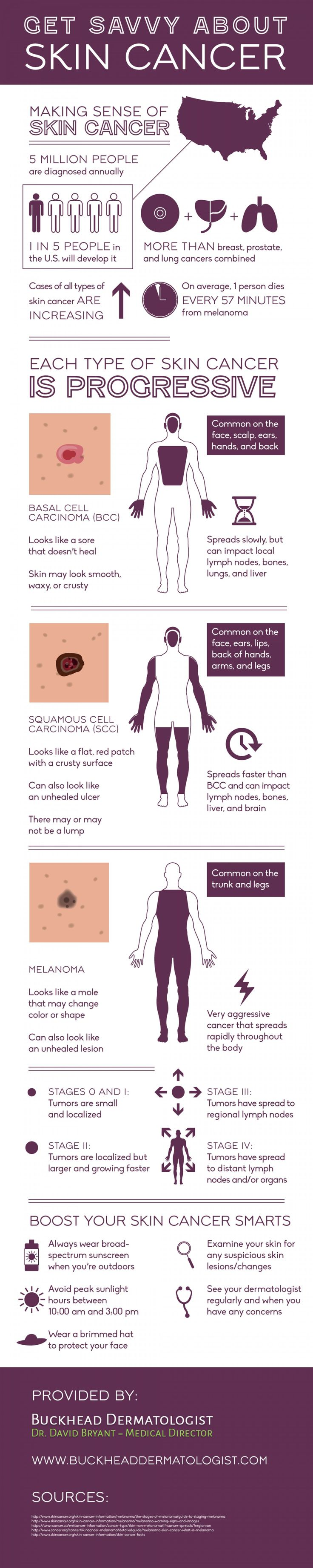 Get Savvy about Skin Cancer --shared by BrittSE on May 30, 2015 - See more at: http://visual.ly/get-savvy-about-skin-cancer#sthash.OKHmdqXh.dpuf