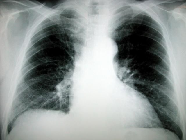 Processed Foods Linked to Lung Cancer