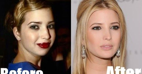 American businesswoman, writer, heiress and former model Ivanka Trump  (full name : Ivanka Marie Trump) is rumored to have had a nose job t...