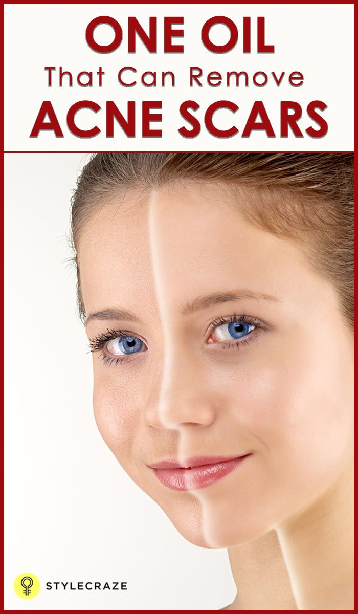 Yeah-yeah! Everyone knows the benefits of olive oil for your skin, hair, and health. But we're just about to give you solutions to clear your skin off those nasty acne scars. They don't belong to your face - get rid of them!
