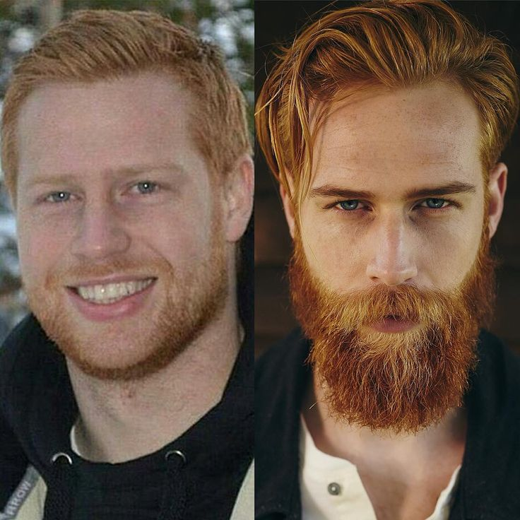 Beard before and after...