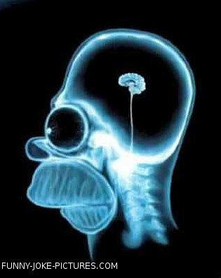 Funny X-Ray Photo Images Homer Simpson