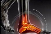 Le traitement efficace d'une épine de Lenoir et de la fasciite plantaire pour réduire la douleur au talon et douleur au pied - http://www.cliniquedupied-md.com/blogue/reduire-la-douleur-au-talon/
