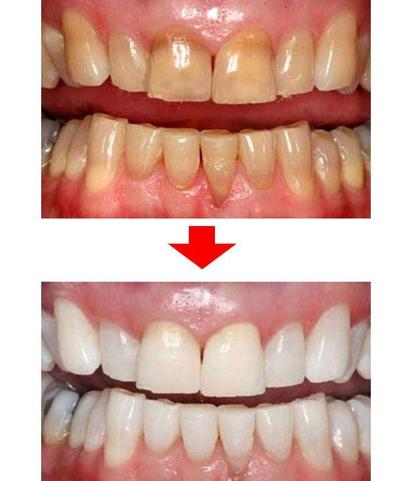 たった2週間●●したら、歯が白くなった方法が口コミで話題に!?
