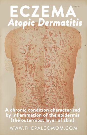 The Paleo Mom- 4 Tips To Combat Eczema Atopic Dermatitis.
