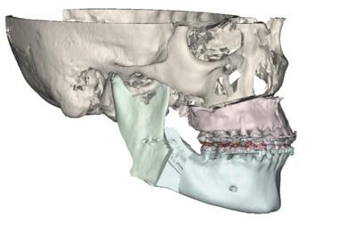Maxilolarioja Blog: Cirugía de las disarmonías de la cara y la sonrisa. ¿Que és la cirugía ortognática?