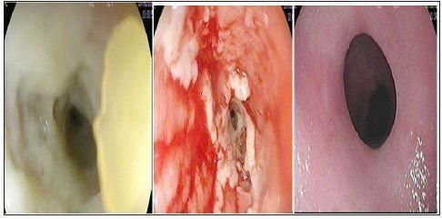 Esophagitis Dessicans Superficialis - Impressive Endoscopic Appearance of a Benign Condition by Syed Adnan Mohiuddin*, Rafie Yakoob, Hamidullah Wani, Omer Eljyli Elssedig, Khalid Mohsen Al Ejji and Saad Rashid Al Kaabi in Biomedical Journal of Scientific & Technical Research (BJSTR)  http://biomedres.us/fulltexts/BJSTR.MS.ID.000609.php