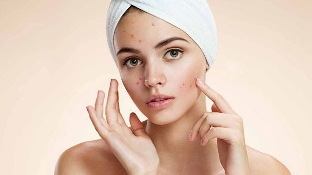 15 Ways to Remove Acne with Natural Ingredients  - Who would not be upset if you have acne prone skin? Acne is a skin problem that one o...