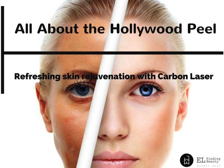 Hollywood Peel Skin Rejuvenation With Carbon Laser Facial