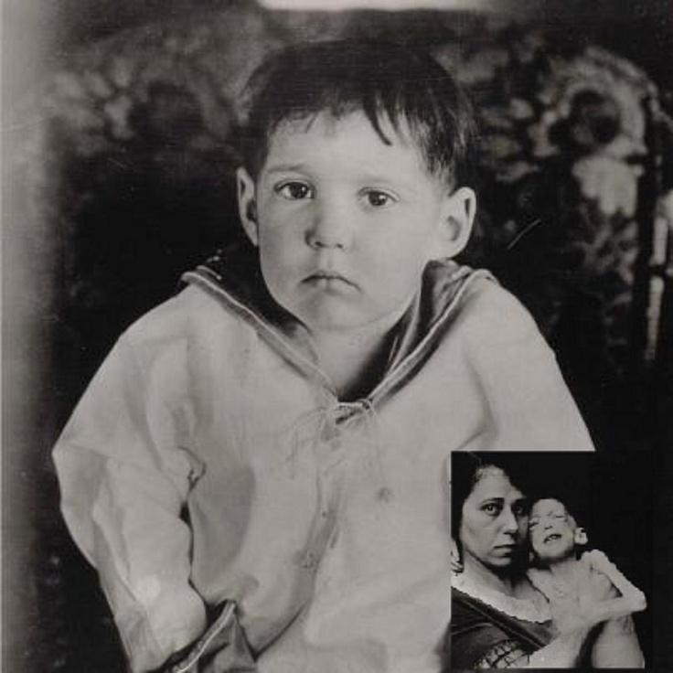 Before Dr. Banting's discovery of insulin, many diabetic patients were put on the Allen starvation diet. 500-600 cal per day, consisting of protein & vegetables, no carbs. Many would die of starvation while waiting for a cure. This is a photo of 3-year-old Leonard Thompson, while on the starvation diet (inset), & several weeks after receiving insulin in 1922.