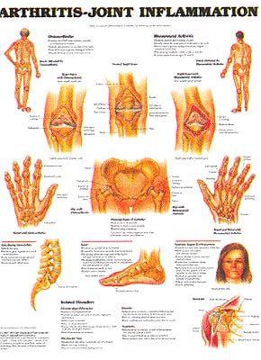 Arthritis Arthritis Symptoms And Martial On Pinterest