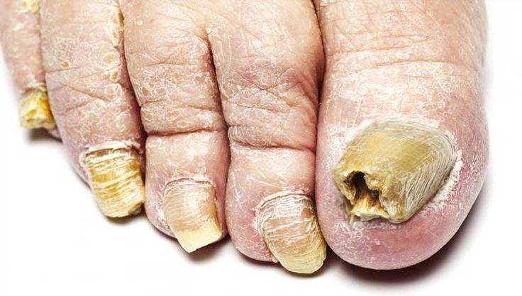 Sintomas de uma doença de um fungo de pernas