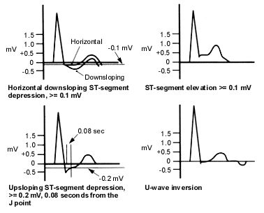 Ordering and Understanding the Exercise Stress Test = Electrocardiographic (ECG) findings suggestive of a positive exercise stress test. In addition to the ECG findings depicted here, the occurrence of frequent premature ventricular contractions (PVCs), multifocal PVCs or ventricular tachycardia at mild exercise (less than 70 percent of maximal heart rate) is suggestive of an exercise stress test positive for myocardial ischemia.