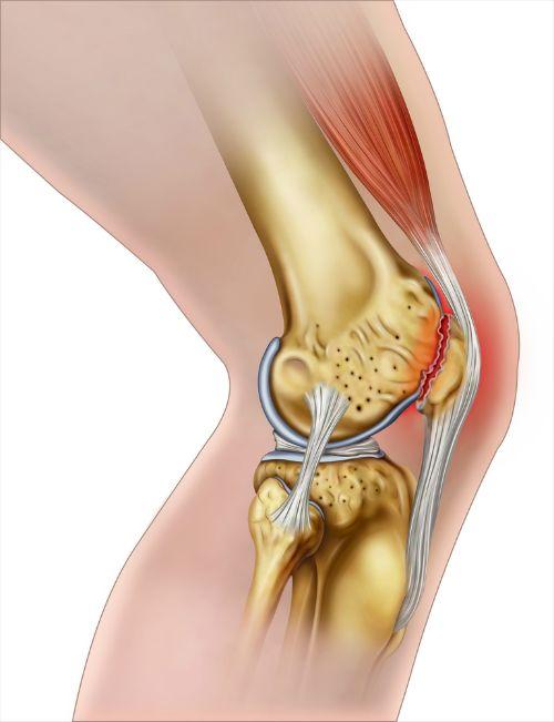 Te vaak hoogspringen, té diep doorzakken bij een afsprong of landing, moeilijke en zware oefeningen en teveel herhalende bewegingen. Dan kunnen je knieën overbelast raken. Heb je langdurig pijn net onder je knie, pijnlijke stijve knieën na het sporten en zere bovenbeenspieren, dan kan het zijn dat je een Jumper's Knee hebt.