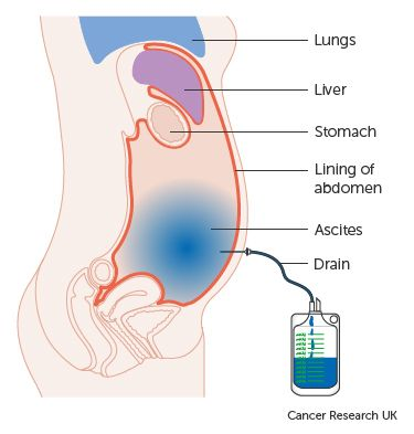 Diagram showing fluid being drained from the abdomen
