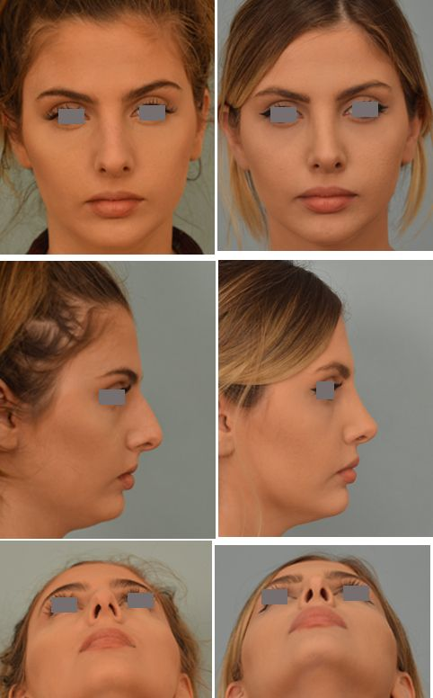 25 best surgery images on pinterest nose jobs plastic surgery and closed rhinoplasty by dr vladimir grigoryants solutioingenieria Images