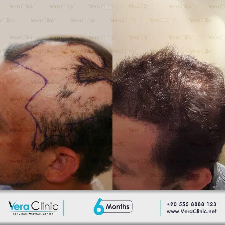 Vera #Clinic #| #Hair #Transplant #in #Turkey #veraclinic en