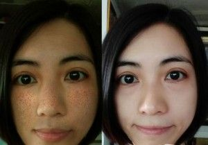 Before and after skin bleaching and removing dark spots