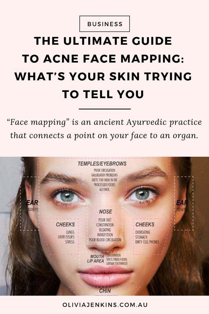 The Ultimate Guide To Acne Face Mapping: What's Your Skin ... on zit mapping, anxiety mapping, skin mapping, atrial fibrillation mapping, botox mapping, anthrax mapping,