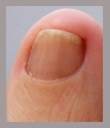 363 best Nail Fungus Treatment images on Pinterest