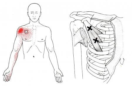 chronic myofascial pain syndrome the trigger point guide