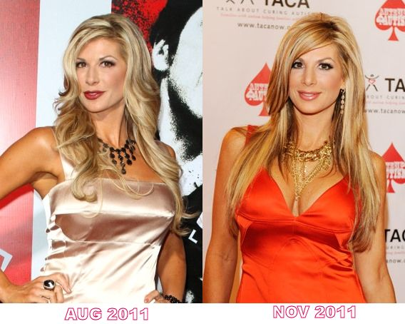 Alexis Bellino plastic surgery before and after photos...