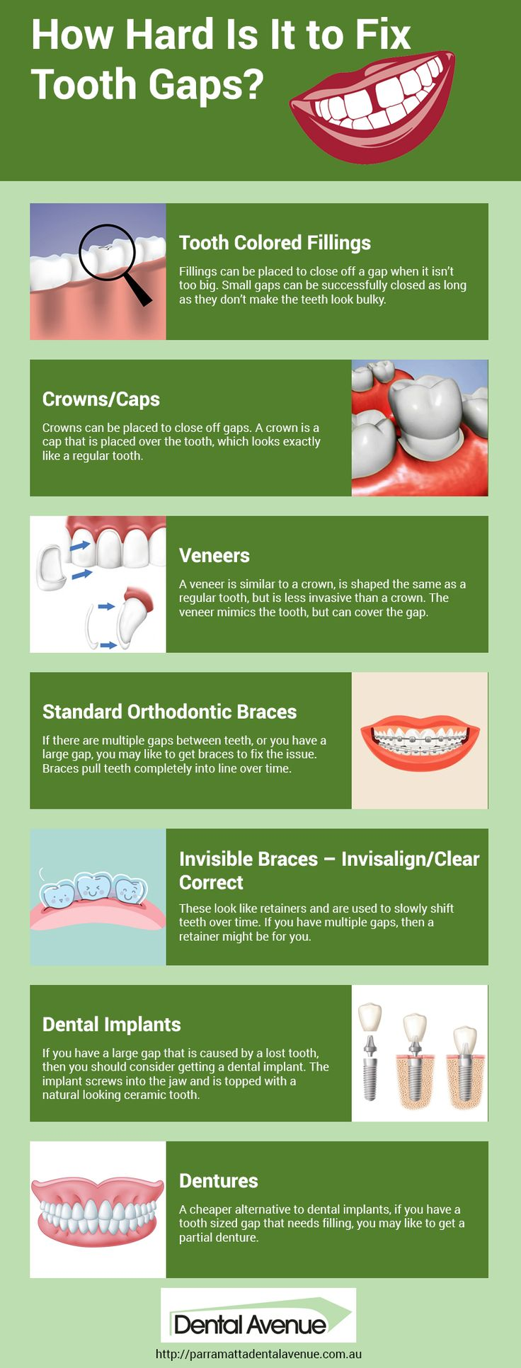 Tooth gaps often results in embarrassment. However, there