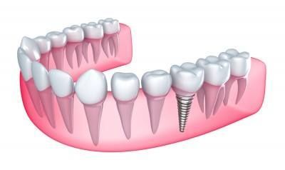 Dental implants can give you back your smile and help you feel better about yourself. Dental implants look and feel like your own teeth. And because they are designed to fuse with bone, they become permanent.  Call us today to schedule your consultation. Our team will help you understand all of your options, pricing and financing.   Proudly serving Orange City residents & all of Central Florida. www.implantsolutionstoday.com | 386-837-1236