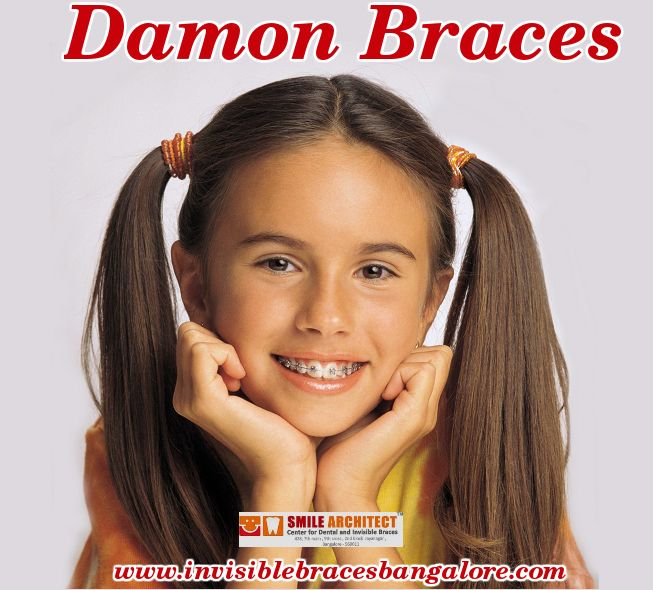 Damon braces do not have ligatures or elastic wires, Sliding mechanism is used for the straightening of the teeth. For more : http://goo.gl/LxOXOK