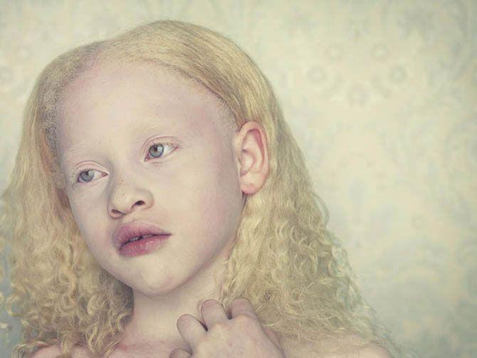 Beautiful albino people | DizzyHamster | Albinobeauty ...