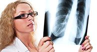 Stage 3 is an advanced stage of lung cancer with specific symptoms and treatments.