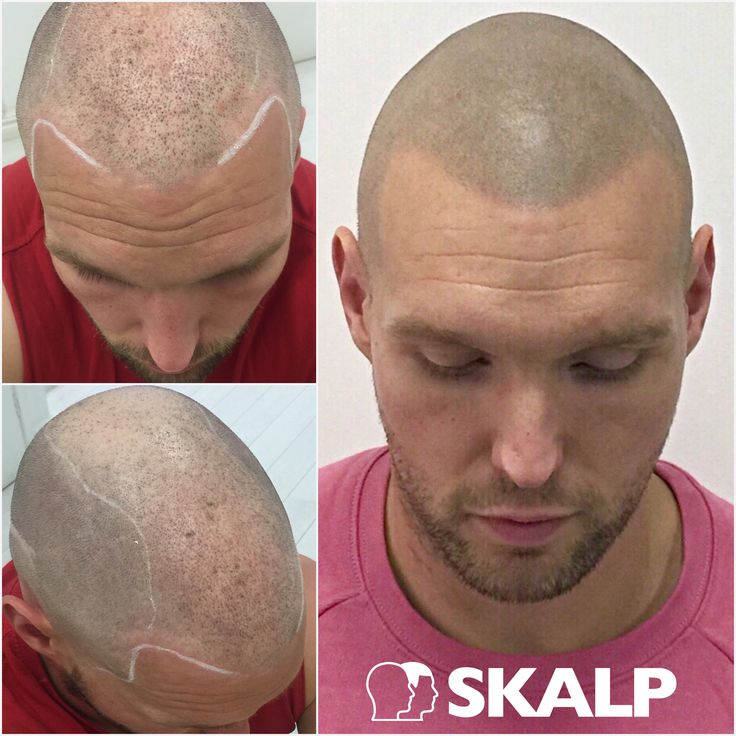 Scalp Micropigmentation is the best solution for any type of hair loss. Finally no need to keep searching for a hair loss cure you have found it.  #SkalpUK #Hairloss #Bald #Solution