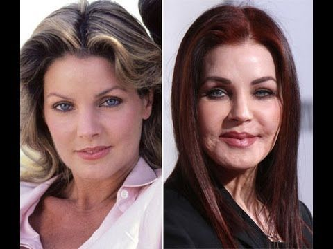 Priscilla Presley Plastic Surgery - very sad.