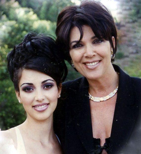 Kim Kardashian opts for cosmetic surgery; misses pre-pregnancy body (see rare pics of Kim)