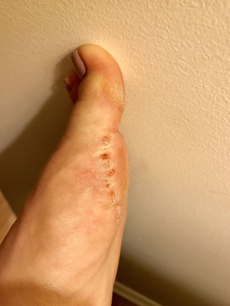 [skin concerns] odd red bumpy rash on foot. any ideas? more details in comments.