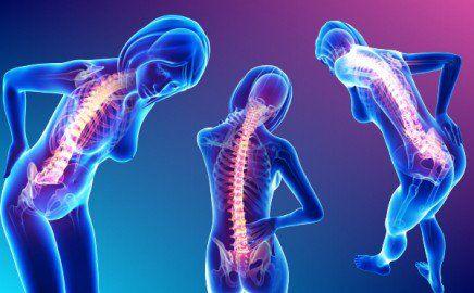 Voici comment soulager vos douleurs au niveau du dos et du cou de manière naturelle et permanente.