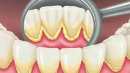 Cómo quitar la placa dental en 5 minutos naturalmente, sin ir al dentista, entérate.