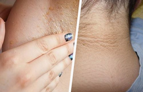¿Es posible blanquear las axilas y el cuello naturalmente?