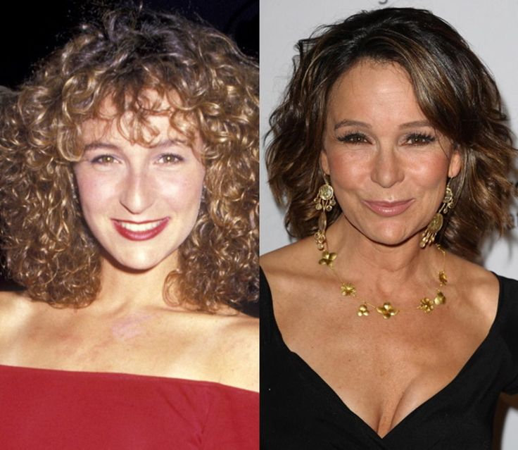 "Jennifer Grey calls hers a ""nose job from hell"" because it left her unrecognizable -- Truly amazing how different she looks  now!"
