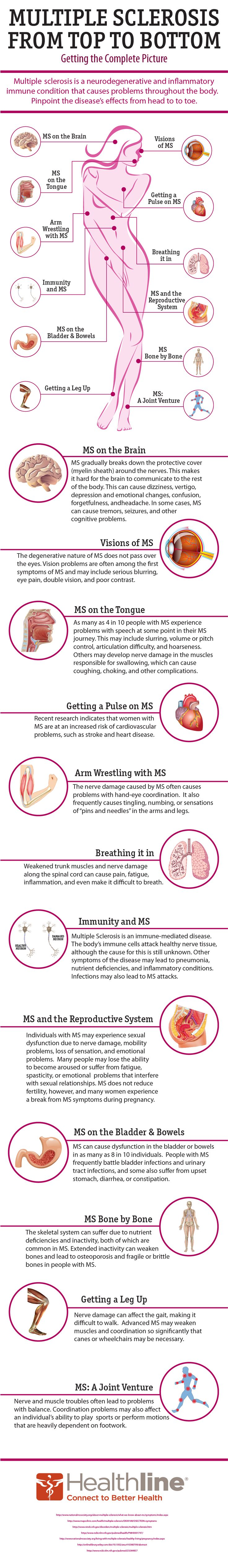 How MS affects the body--getting the complete picture from head to toe. Repinned by  SOS Inc. Resources  http://pinterest.com/sostherapy.