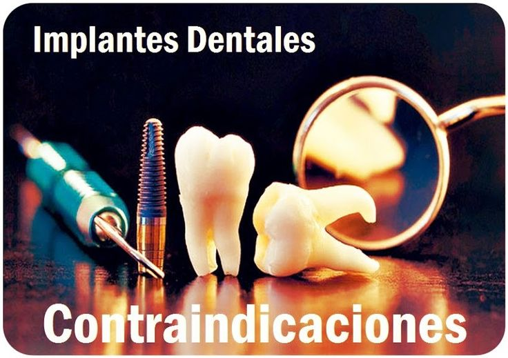 Contraindicaciones para la colocación de implantes dentales | OVI Dental
