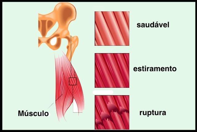 Panturrilha músculo na distendido um como tratar