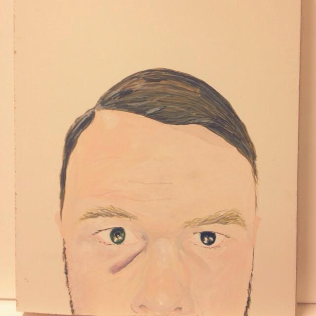 Black eye. (Self portrait)
