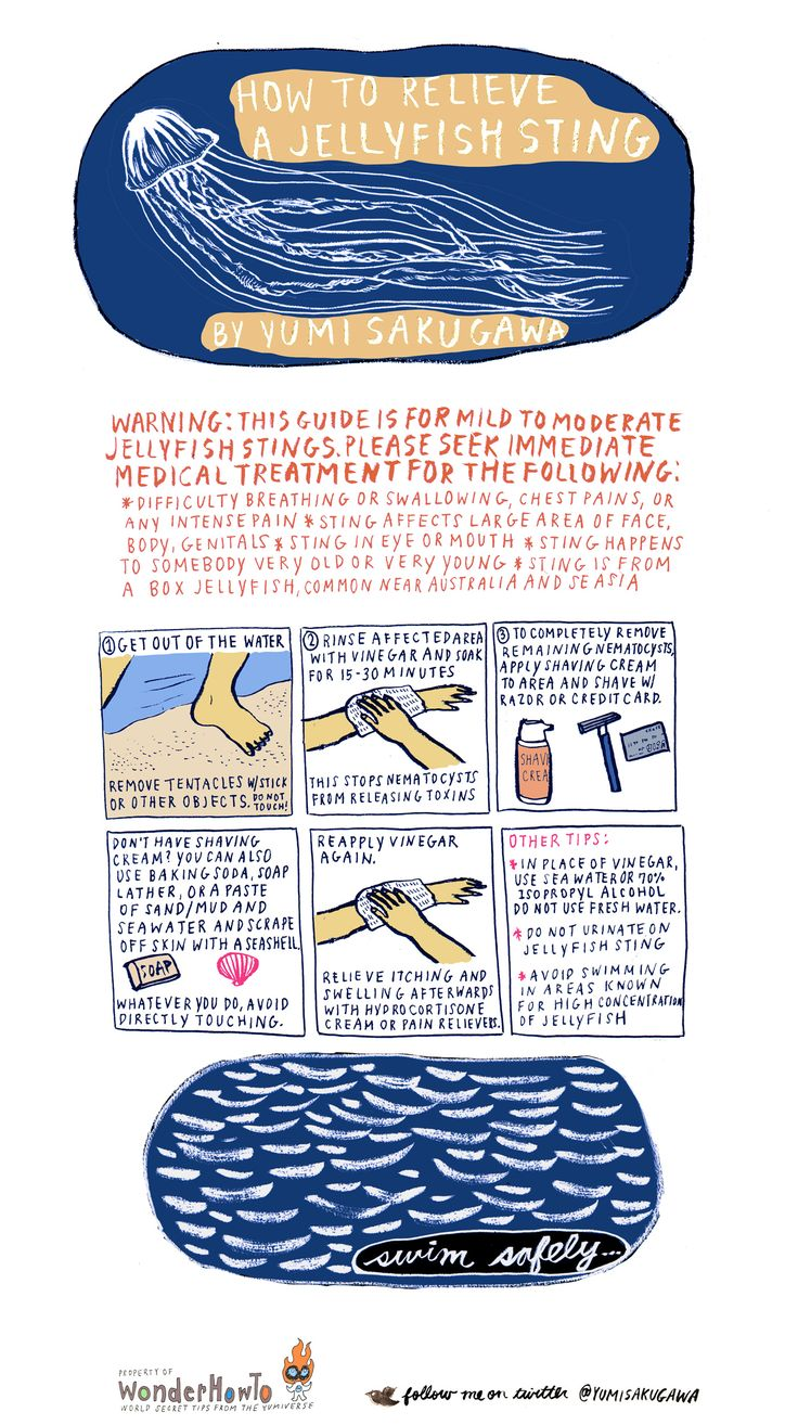 what to do for a jelly fish sting